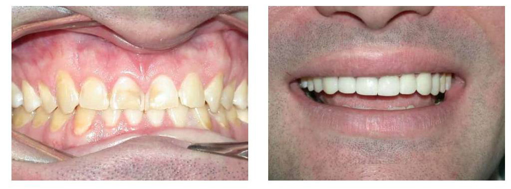 A Few Before and After Pics of Our Patients