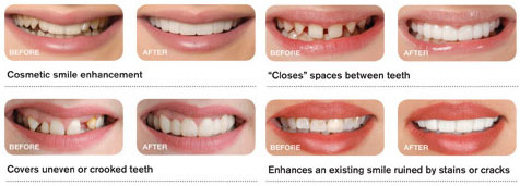 Take a look at what Snap on Smile can do!